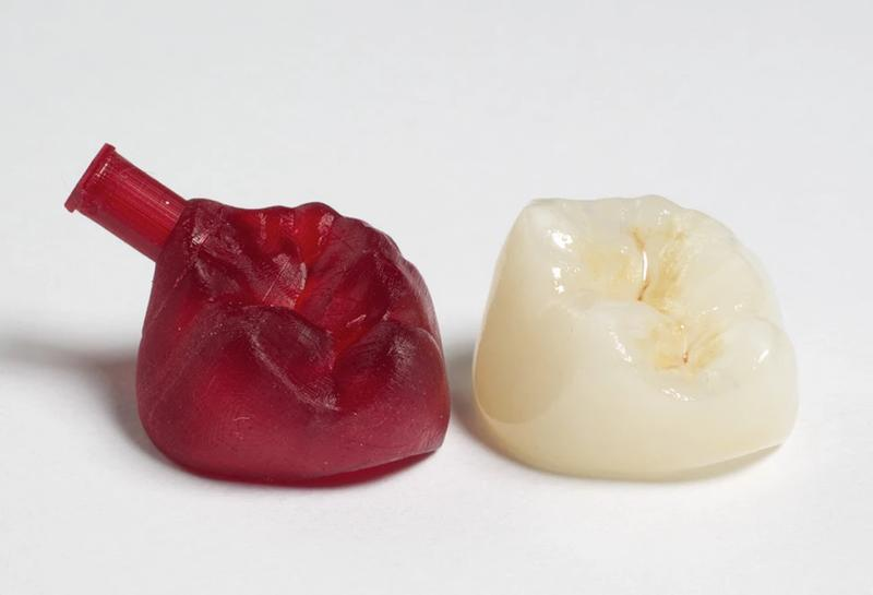 The extreme accuracy of the printer allows for creating real-scale dental models used for orthodontic applications. Look at the pictured model, it shows hairlike details.