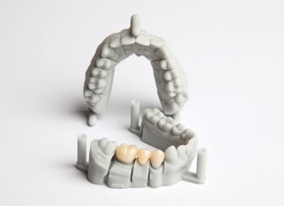 These dental impressions are almost perfect. Each minute detail is clearly visible.