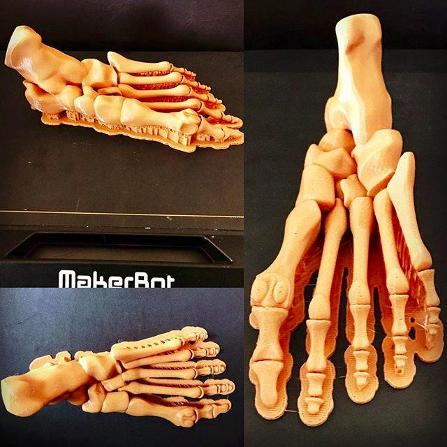 3d the bones of the foot