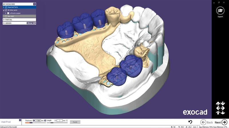 dental 3D scan